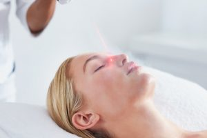 liquid nitrogen facial treatment San Diego Cryotherapy